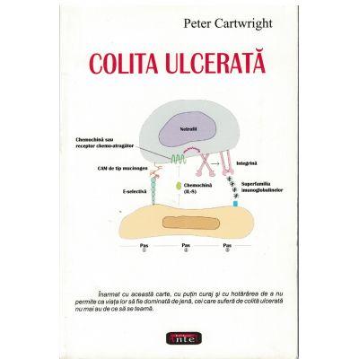 Colita ulcerata – Peter Cartwright